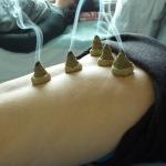 Moxa cones