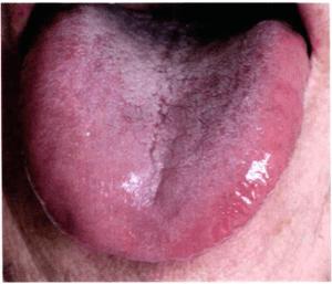 Feuer Zungendiagnose