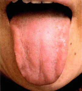 Normale Zunge Zungendiagnose