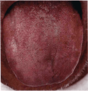 Violette Zunge Zungendiagnose