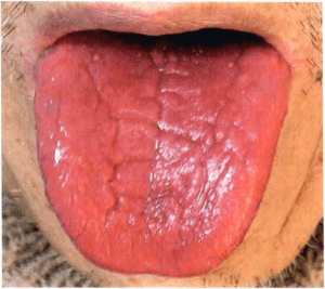 Yin-MangelZunge Zungendiagnose