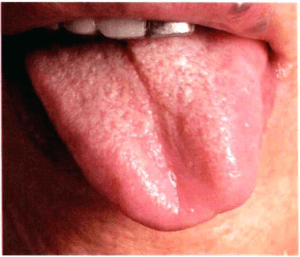 abweichende Zunge Zungendiagnose