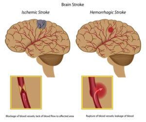 Schlaganfall-stroke-akupunktur-tcm