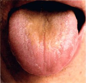 Zunge geschwollen