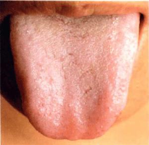 Zungenbelag klebrig und ölig